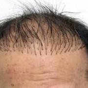 wenkbrauw haartransplantatie